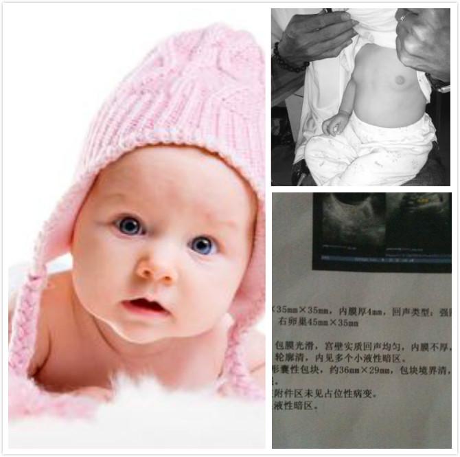 功能性卵巢囊肿可引起儿童早熟