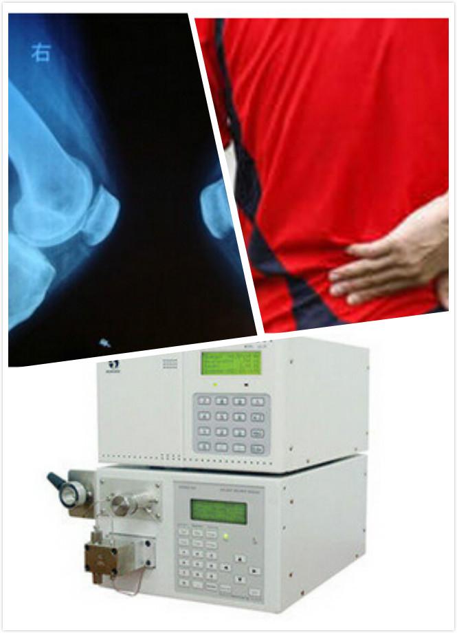 骨质增生疾病的检查方法