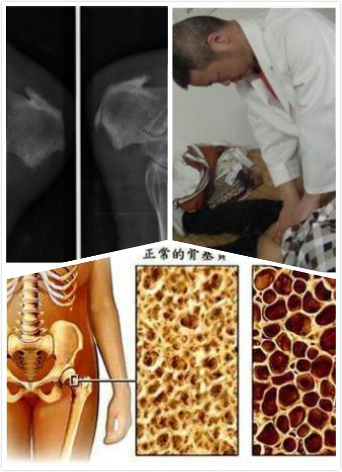 骨质增生并发症的介绍