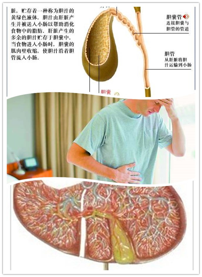 胆囊息肉的并发症有哪些