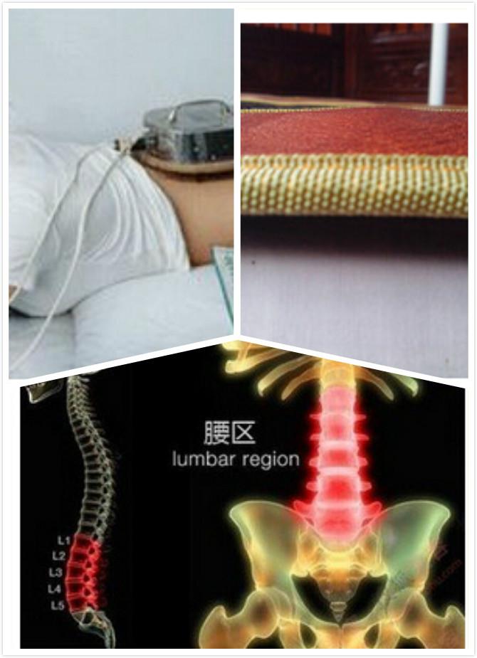 腰肌劳损要做哪些检查