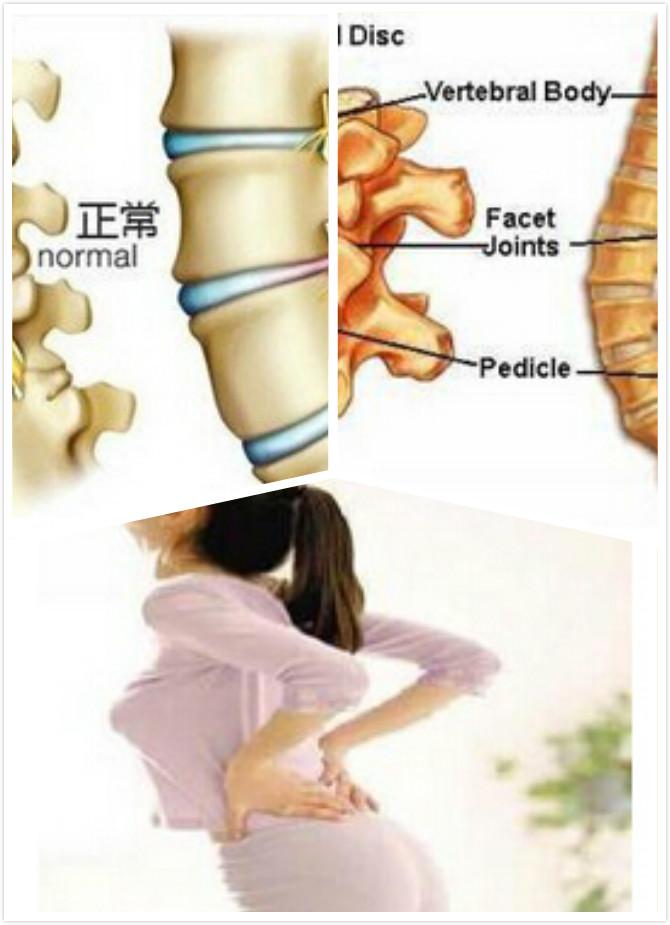 腰肌劳损的病例介绍