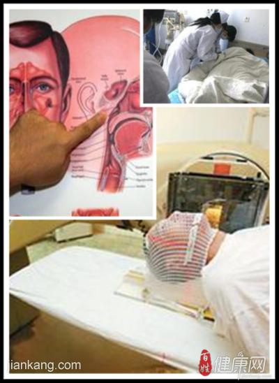 鼻咽癌都有哪些症状表现呢