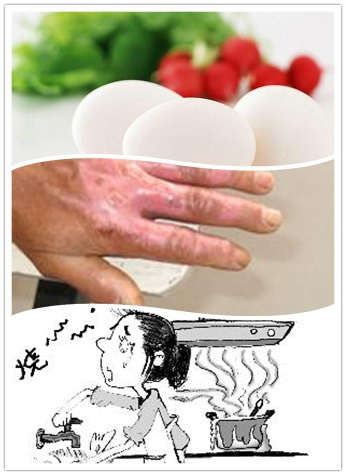 烧伤的饮食保健方法有哪些