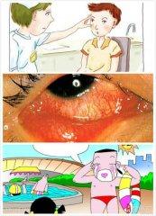 红眼病吃些什么好呢