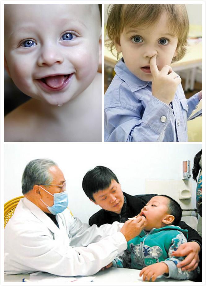 小儿咳嗽的中医病理有哪些