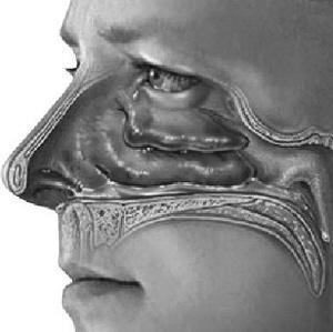鼻窦炎治愈的最佳方法是什么