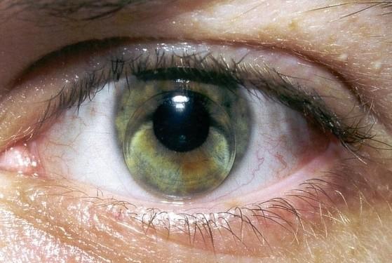 青光眼还会引发哪些疾病呢