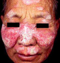 亚急性皮肤型红斑狼疮的表现有哪些