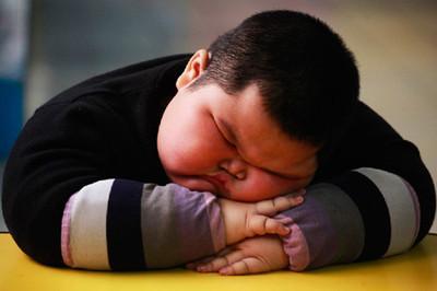 小儿肥胖的常见症状有哪些