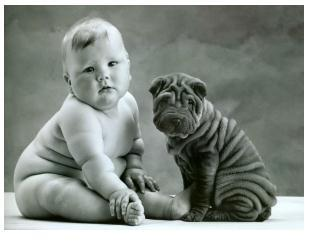 小儿肥胖的临床诊断依据