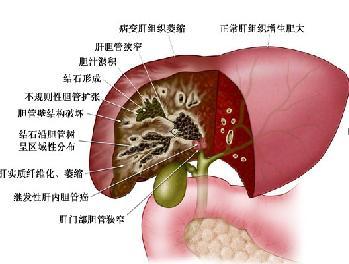 简单介绍胆囊癌病人的护理