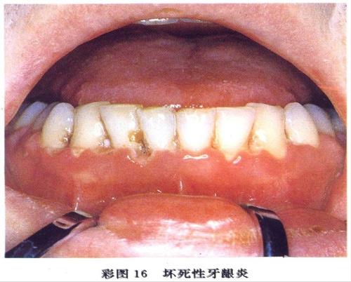 牙龈炎吃什么药比较好
