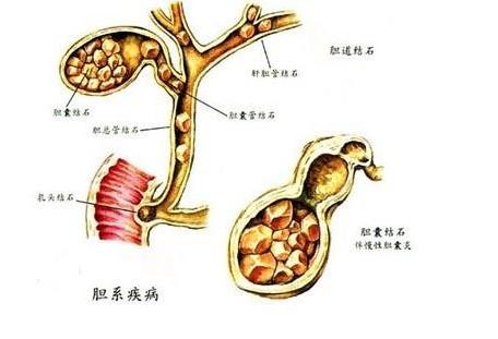 胆囊癌案例分析的相关介绍