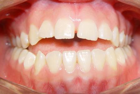 怎么做牙龈炎的自我诊断呢