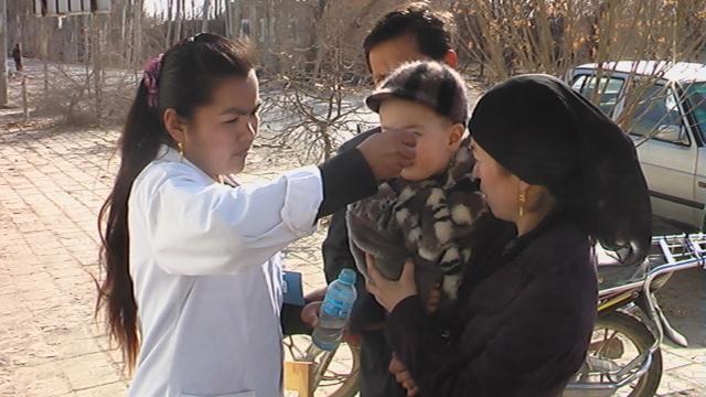 小儿麻痹症的类型有哪些