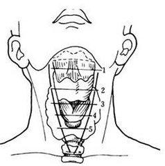 喉癌手术病例解析
