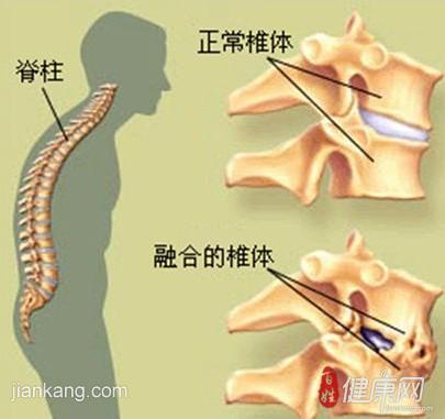 强直性脊柱炎患者应采如何锻炼呢