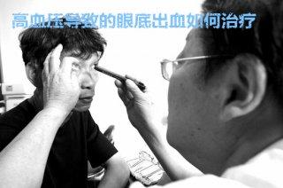 高血压导致的眼底出血如何治疗