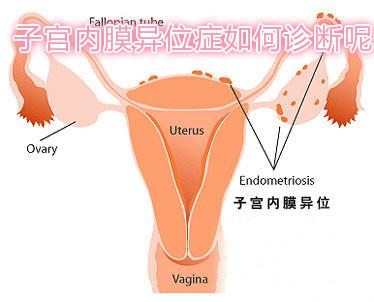 子宫内膜异位症如何诊断呢