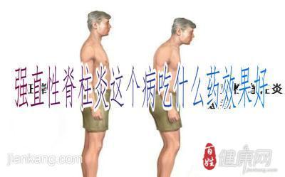 强直性脊柱炎的患病原因都有哪些