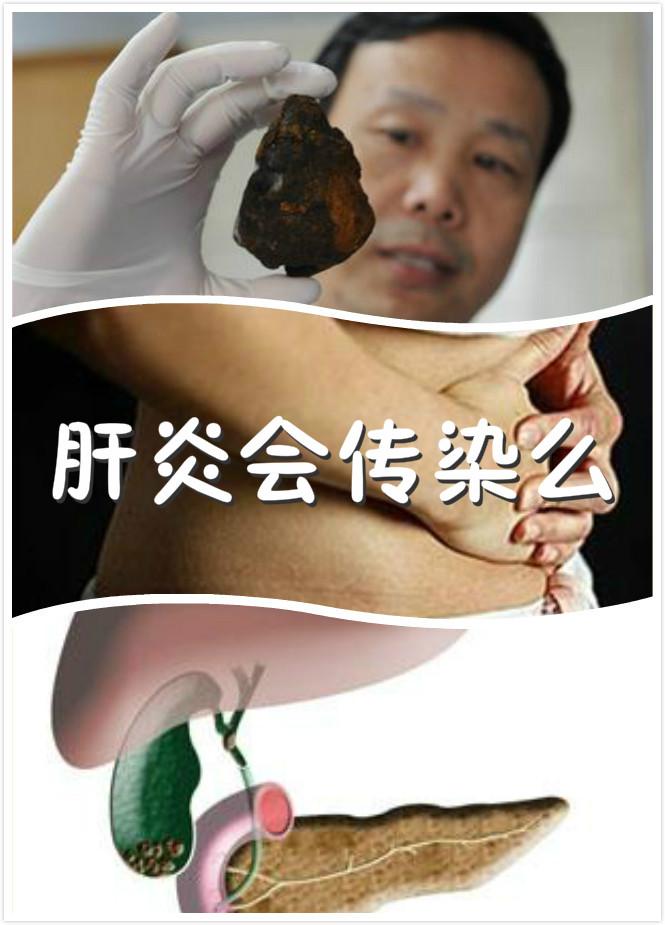 肝炎会传染么