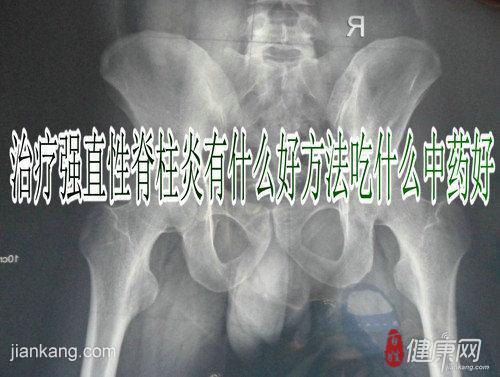 强直性脊柱炎怎样预防好