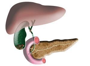 慢性肝炎的症状是什么