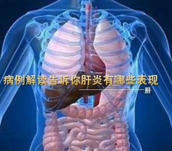 病例解读告诉你肝炎有哪些表现呢