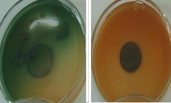 铜绿假单胞菌感染用药治疗该怎么做