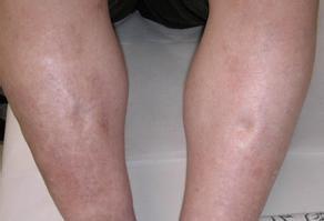 单脚水肿的致病原因都是什么呢