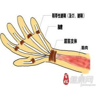 腱鞘炎手术后应该如何护理呢