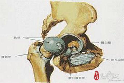 股骨头坏死早期应该如何治疗