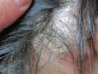 头皮型银屑病图片