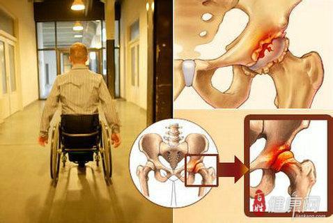 治疗股骨头坏死的五种药品介绍