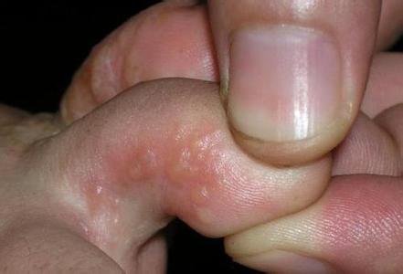 关于手足癣的治疗方法