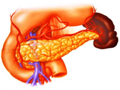 导致胰腺癌的原因有哪些