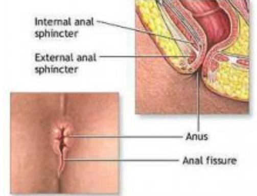 肛裂出血的原因是什么?