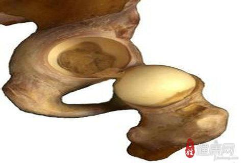 中医治疗股骨头坏死的三则处方