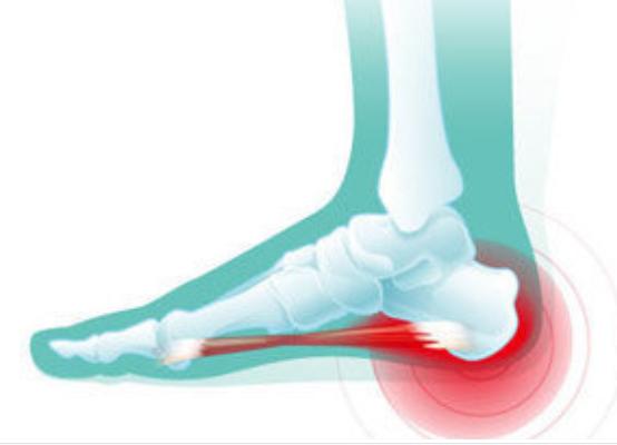足跟骨质增生的症状