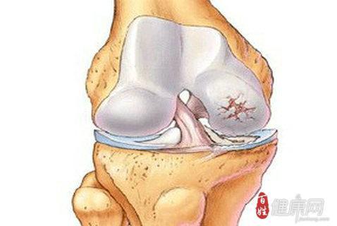 早期股骨头坏死应怎么治疗呢