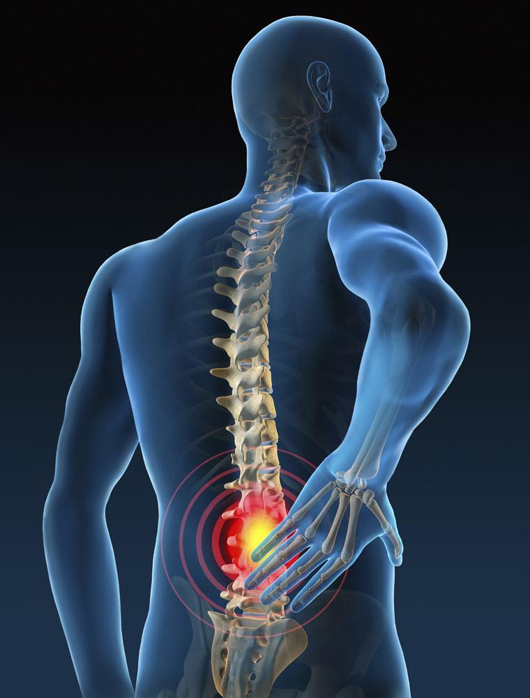 什么是关节炎