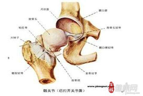 无菌性股骨头坏死有哪些症状