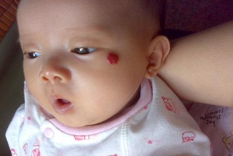 患上婴儿血管瘤严重吗