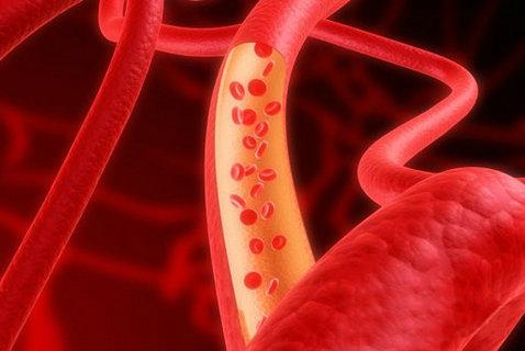 得了肝部血管瘤严重吗