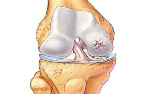 外伤性股骨头坏死都有哪些症状
