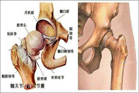 股骨头坏死有什么初期症状