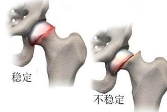 早期股骨头坏死有什么表现