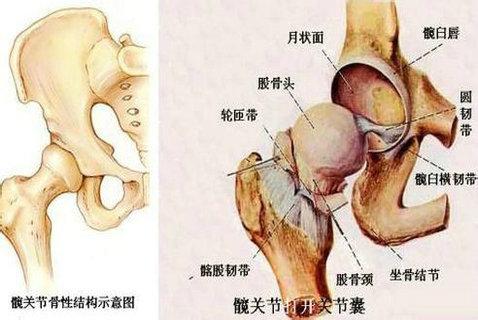中医是如何治疗股骨头坏死的呢