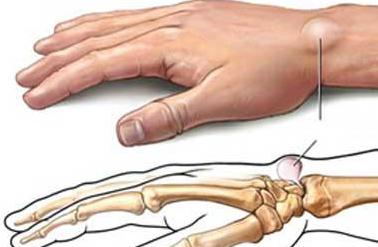 腰部脂肪瘤的危害有哪些呢